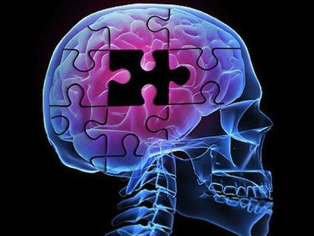 5 sätt att minska risken för demens och Alzeimers