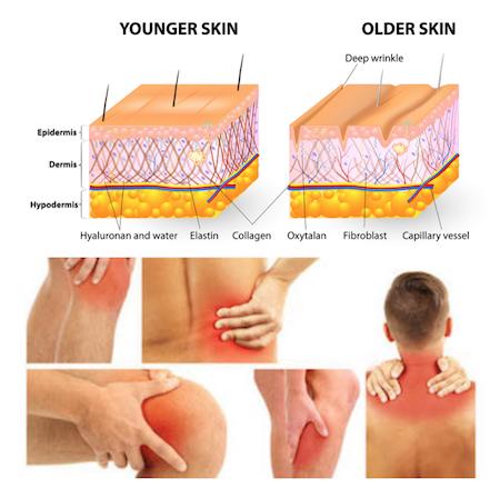 Kollagen tillskott for hud, leder och muskler