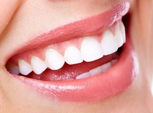 Vitare tänder med naturlig blekning